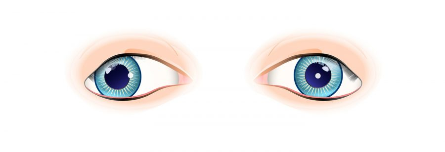 Between 2 and 4 percent of the population has improper alignment of the eyes, a condition known as strabismus.